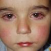 Конъюнктивит у детей лечение, народные средства