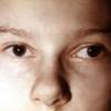 Косоглазие детей: причины, лечение