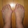Косточки на ногах: как лечить? Косточки на ногах: как формируются?