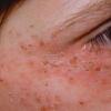 Красные пятна на лице шелушатся – что делать?