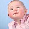 Красные щеки у ребенка: причины
