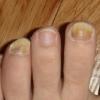 Креолин для лечения грибка ногтей