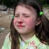 Кровотечение из носа: причины, что делать?