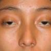 Лагофтальм – симптомы, лечение