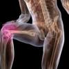 Лечение деформирующего артроза коленных и тазобедренных суставов