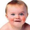 Лечение диатеза у маленьких детей