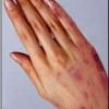 Лечение экземы рук народными средствами