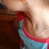 Лечение контагиозного моллюска