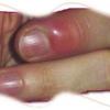 Лечение нарыва большого пальца возле ногтя