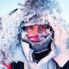 Лечение обморожения в домашних условиях - что можно и что нельзя делать