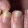 Лечение псориаза ногтей