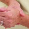 Лечение ревматоидного артрита народными средствами