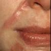 Лечение рубцов и шрамов на лице лазером, народными средствами в домашних условиях