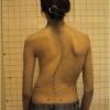Лечение сколиоза искривление позвоночника