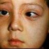 Лечение тортиколлиса в детском возрасте