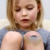 Лечение ушибов и синяков народными способами