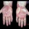 Лишай – общее название кожных болезней