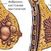 Мастопатия доброкачественное заболевание молочной железы