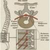 Межпозвонковая грыжа шейного отдела
