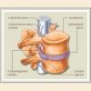 Межпозвоночная грыжа поясничного, грудного, шейного отдела симптомы, лечение