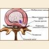 Межпозвоночная грыжа спины – лечение, причины, симптомы заболевания