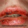Многоформная экссудативная эритема: лечение, симптомы, причины