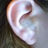 Можно ли капать перекись водорода в ухо?