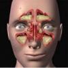 Мукоцеле придаточных пазух носа