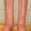 Народные средства лечения от слоновости ног