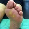 Натоптыши на подошве, пятках, пальцах ног, лечение