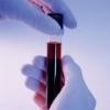 Норма хорионического гонадотропина человека ХГЧ при беременности