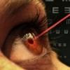 Новейшие лазерные методы коррекции зрения
