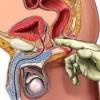 Новейшие методы лечения простатита у мужчин