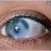 Новые методы лечения глаукомы