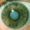 О помутнении хрусталика глаза