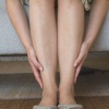 Опасное заболевание варикоз ног