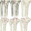 Операции при переломе большой берцовой кости