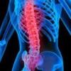 Остеохондроз позвоночника причины и лечение