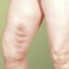 Острый тромбофлебит вен нижних конечностей, лечение