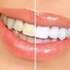 Отбеливание зубов народными средствами в домашних условиях