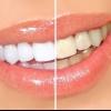 Отбеливание зубов перекисью водорода: отзывы