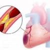 Патология сердца инфаркт миокарда