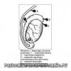 Перекрут гидатиды яичка, последствия, послеоперационный период, причины
