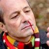 Первая медицинская помощь при кровотечении из носа