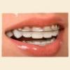 Пластинки на зубы для выравнивания