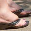 Почему в летнее время отекают ноги