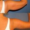 Подтяжка кожи на руках брахиопластика
