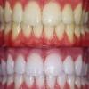 Показания и противопоказания к отбеливанию зубов