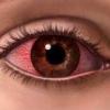 Помощь при аллергических конъюнктивитах