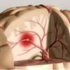 Последствия нарушения мозгового кровообращения